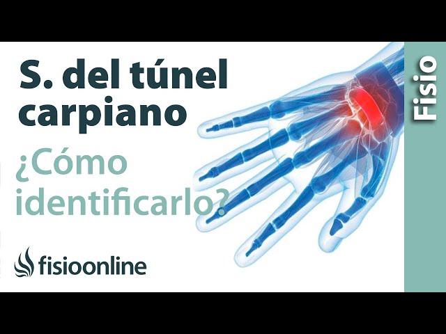 tratamiento sindrome tunel carpiano leve
