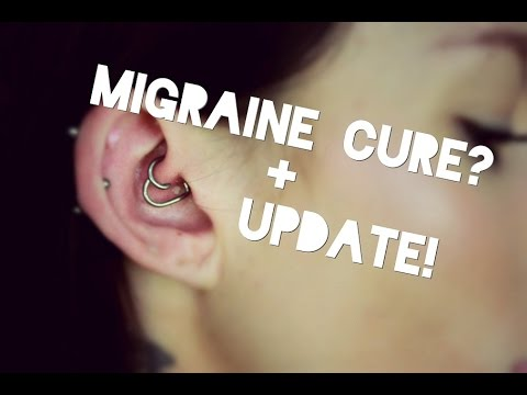 Daith Piercing & Migraines + ONE YEAR UPDATE!