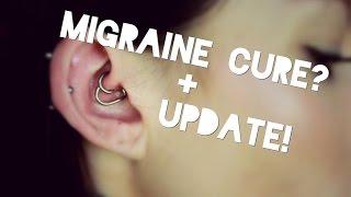 Daith Piercing & Migraines + ONE YEAR UPDATE!