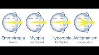 hyperopia myopia norma