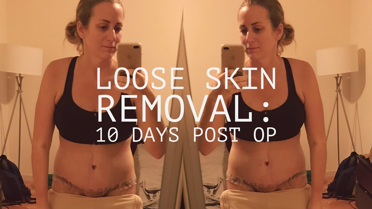 Loose Skin Removal: 10 Days Post Op