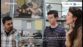 Dame una mano | ¿Cómo podemos ser parte de la meta de 50 prótesis? Flora Martínez