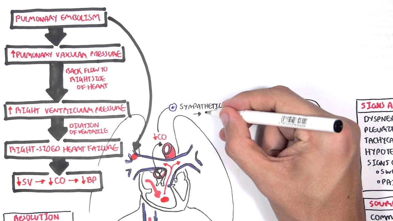Pulmonary Embolism PART I Overview