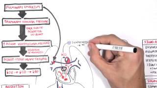 Aisyah Elliyanti : Kelas Tutorial Penyakit Jantung Infeksi.