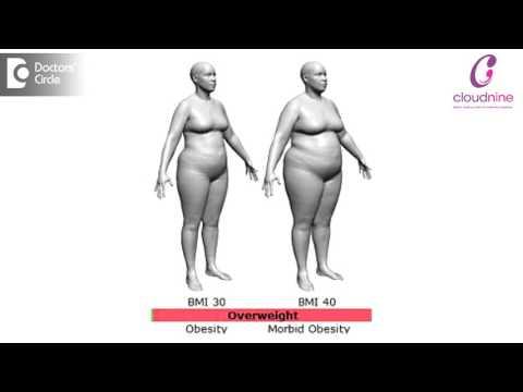 Losing Weight Before Pregnancy Planning – Dr. Anuradha Sadashivamurthy   Cloudnine Hospitals