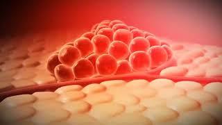 새로운 암치료, 광역학치료(PDT)