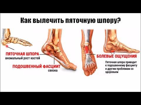 Боль в стопе | Лечение | Блокада плантарного фасциита | Plantar Fasciitis Injection Treatment