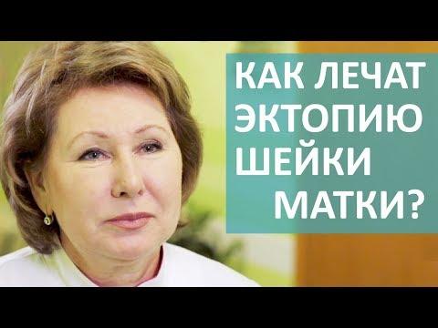 🔎 Что такое эктопия шейки матки и малоинвазивные методики ее лечения. Эктопия шейки матки. 12+