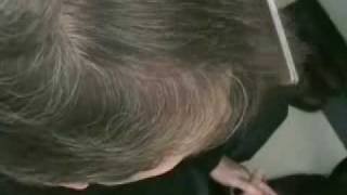 Dr Wong Hair Transplant - 6918 Grafts - 2 Sessions
