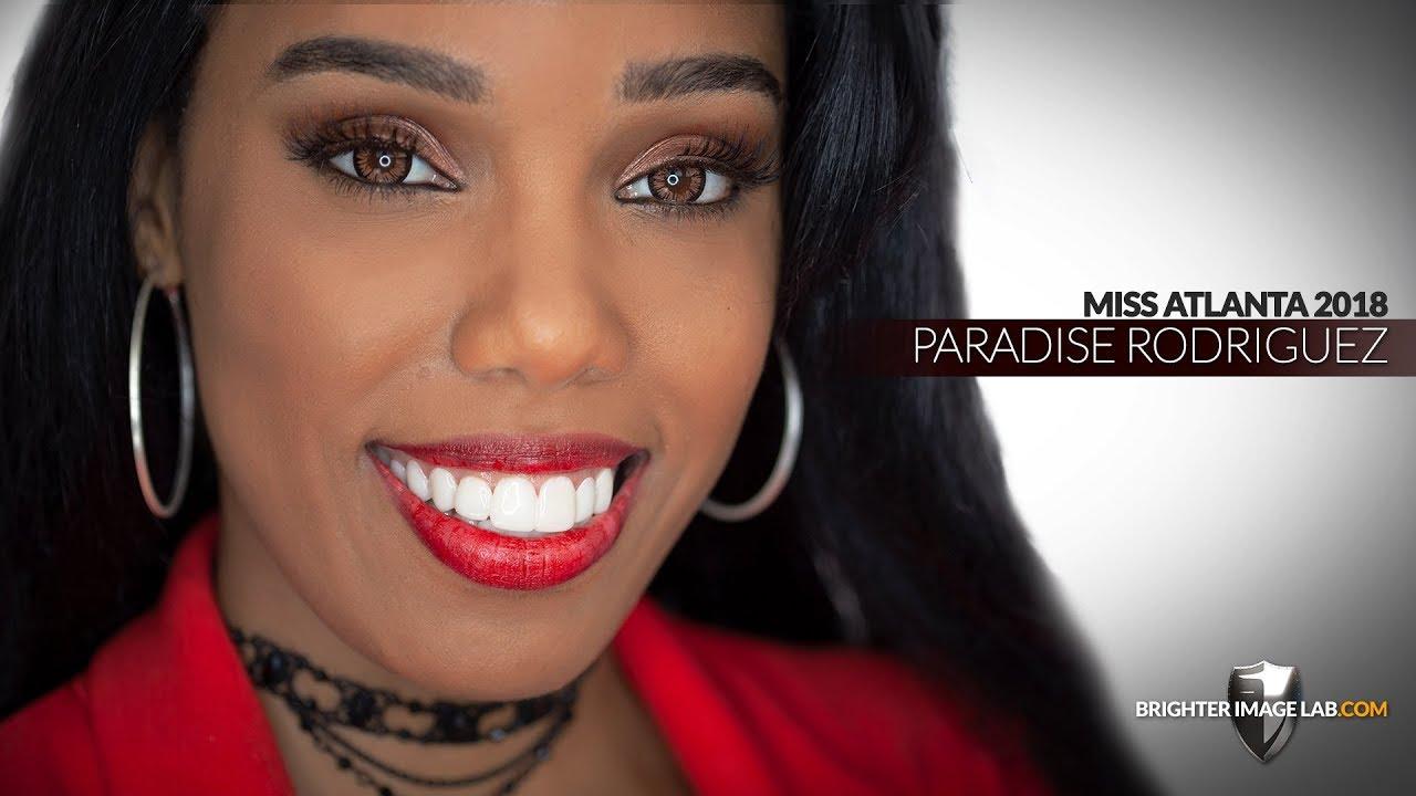 Miss Atlanta Georgia Gets NO DENTIST Dental Veneers Smile Makeover by Brighter Image Lab