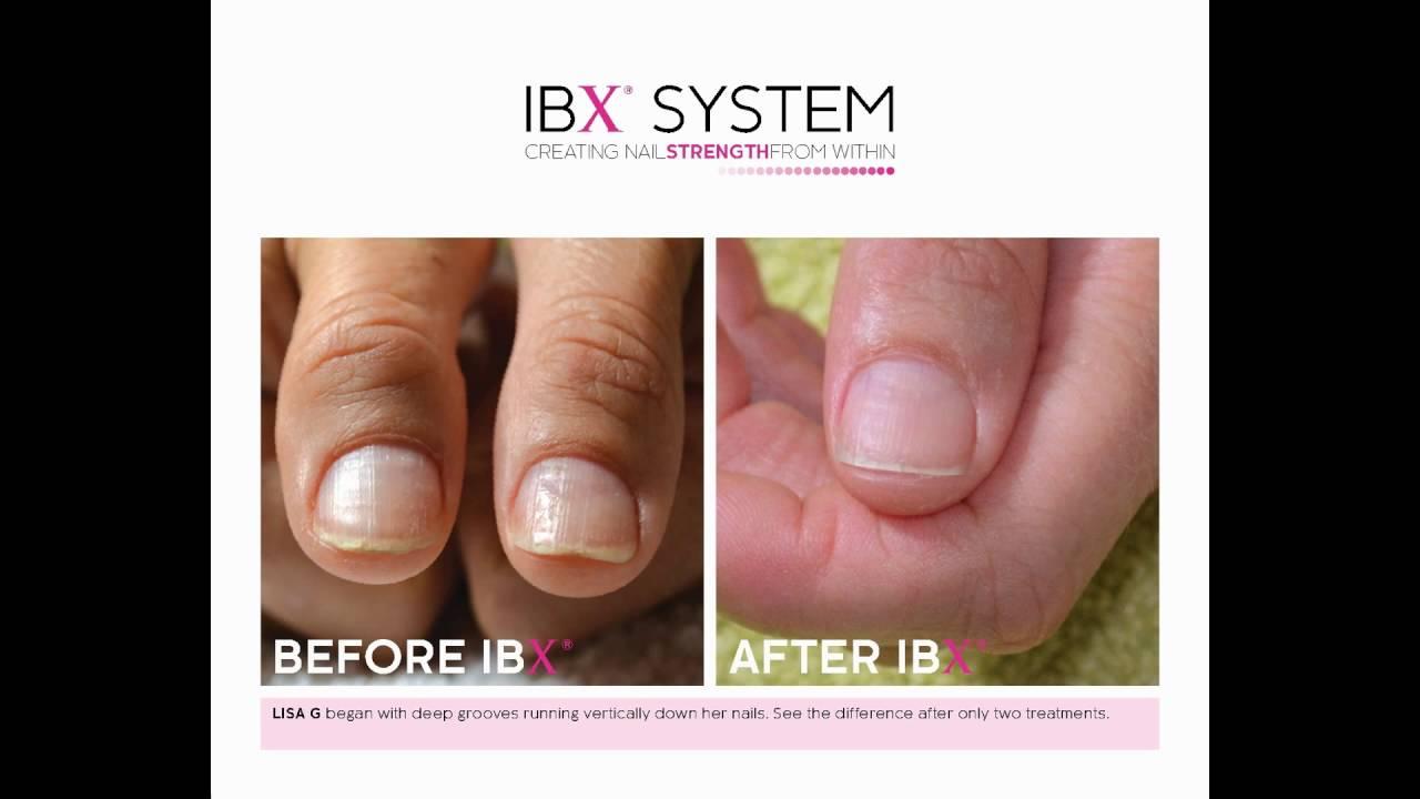 IBX Nail Treatment - YouTube