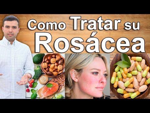 Adiós a la Rosacea - Remedios Caseros Y Cremas Para Combatir Y Curar las Manchas en la Cara Y Piel