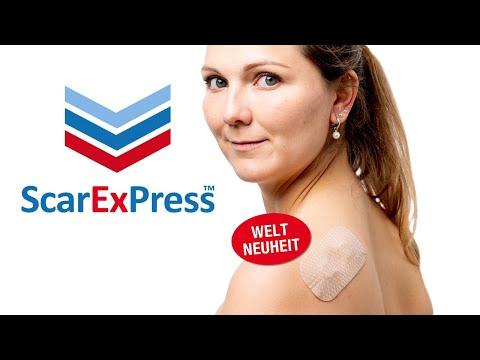 ScarExPress - das erste Narbenpflaster mit Kompression - für Keloide und hypertrophe Narben