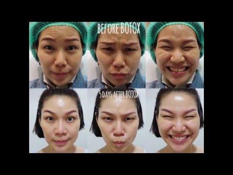 สวยสมวัย ใสมีสติ-ยกคิ้ว ลดกราม หน้าผากตึง ด้วย Botox (Immagini Clinic)
