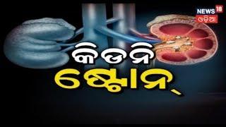 MY DOCTOR | କିଡନି ଷ୍ଟୋନ | October 14, 2018 | News18 Odia