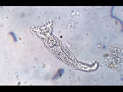The Rotifer: One of Earth's Smallest Animals [400X]