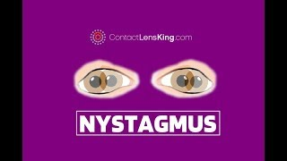 very subtle torsional nystagmus elicited by sound, superior canal dehiscence..