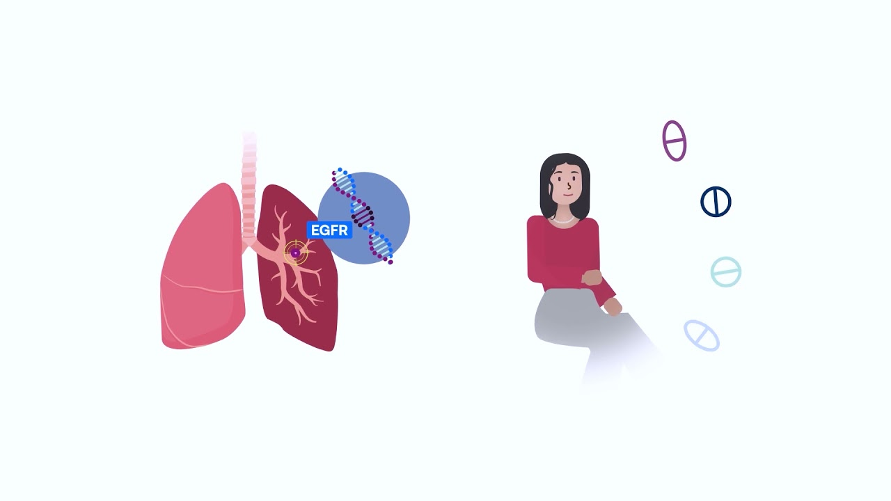 Lung Cancer Biomarker Testing: A Caregiver's Perspective