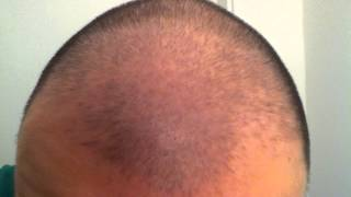 Minoxidil 5% Day 32 Hair Growth Experiment Using Rogaine
