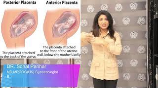 Low lying placenta आंवल का नीचे होना , ऐसे में normal delivery  हो सकती है ?