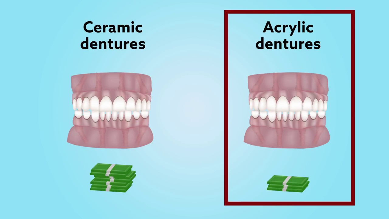Long-term comparison of acrylic vs. ceramic All-on-8® fixed dentures