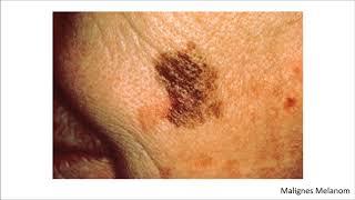 Dermatologie Blickdiagnosen / Krankheitsbilder
