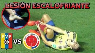 🚨ESCALOFRIANTE LESIÓN de Santiago Arias | Colombia vs Venezuela 2020 | Eliminatorias CONMEBOL
