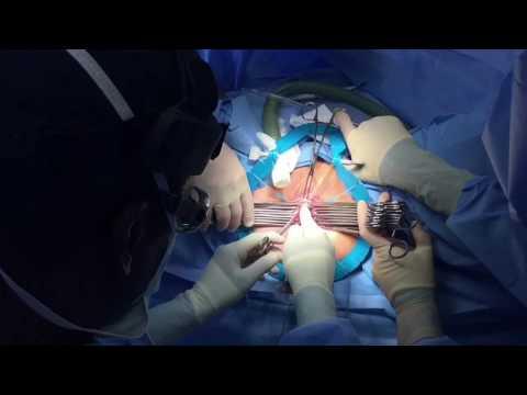 Laser Vaginal Rejuvenation