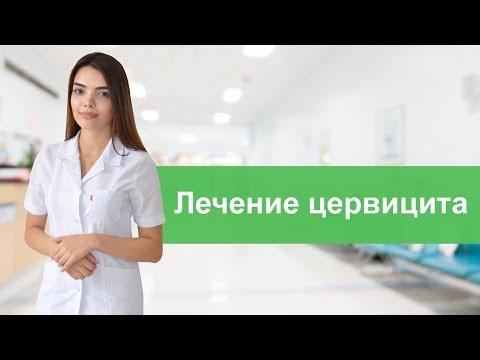 Лечение цервицита
