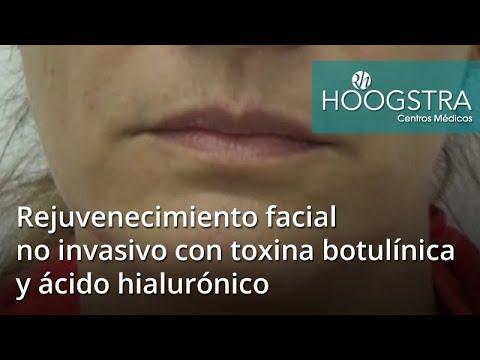 Rejuvenecimiento facial no invasivo con toxina botulínica y ácido hialurónico (18059)