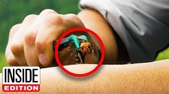 What It's Like to Be Stung by a Murder Hornet