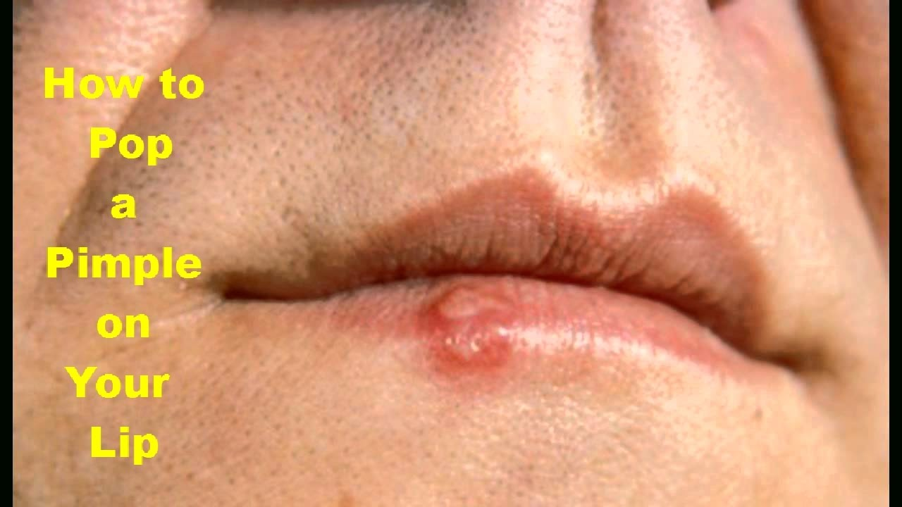How To Pop A Pimple On Your Lip Fast Pop A Pimple Naturally At Home