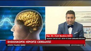 Endoskopik Beyin Cerrahisinde Yeni Yaklaşımlar