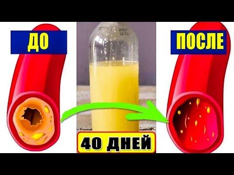Всего 1 стакан этого сока Вычистит сосуды от Холестерина за 40 дней без лекарств дома.
