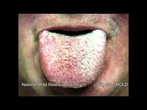 The Symptoms Of Mold Exposure And Illness From Black Toxic You