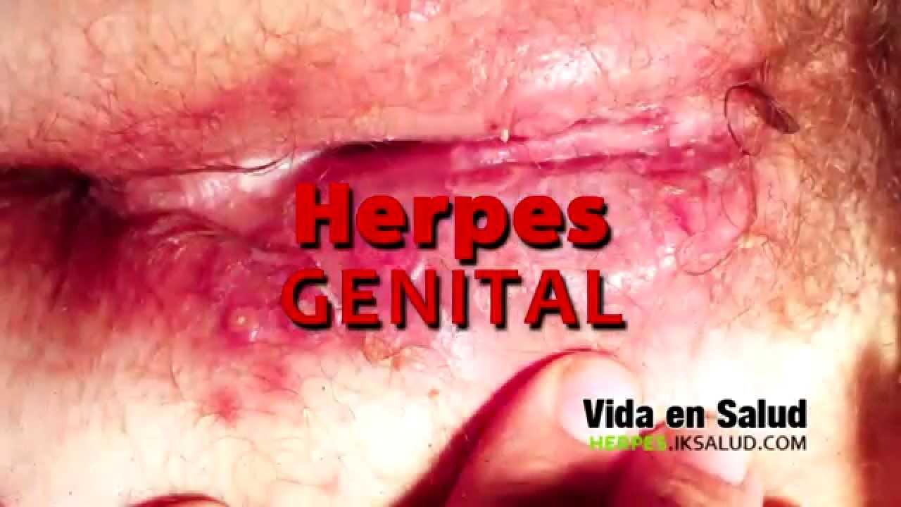 Fotos sobre el herpes genital femenino 51