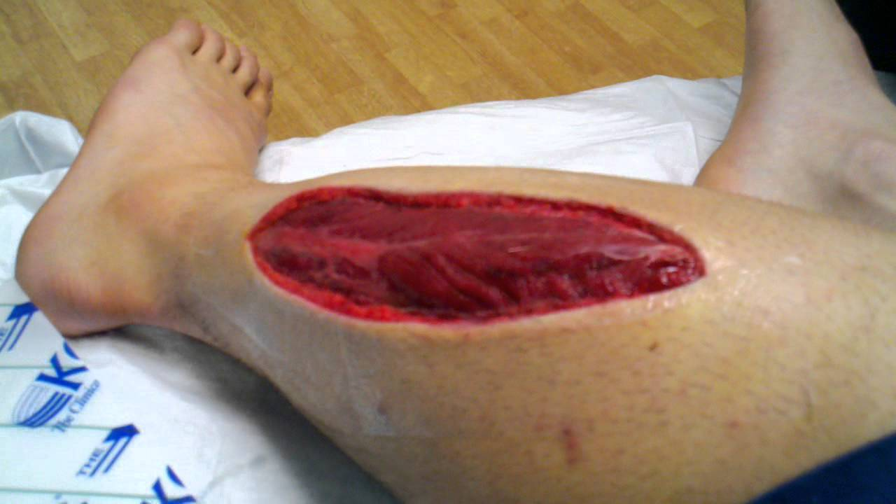 compartment syndrome Learn about compartment syndrome, find a doctor, complications, outcomes, recovery and follow-up care for compartment syndrome.