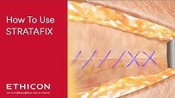 STRATAFIX Best Practices Video