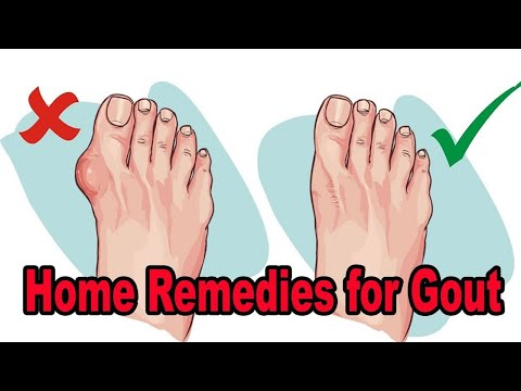 Home Remedies for Gout - Natural Remedies for Gout Pain Relief