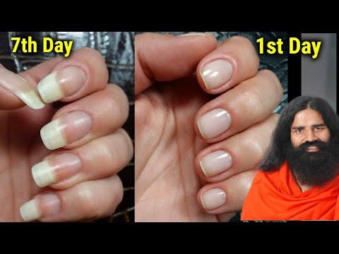 नाखून लम्बे मजबूत और सुंदर बनाने के उपाय/Nakhun badhane ka tarika baba ramdev/nails growth tips