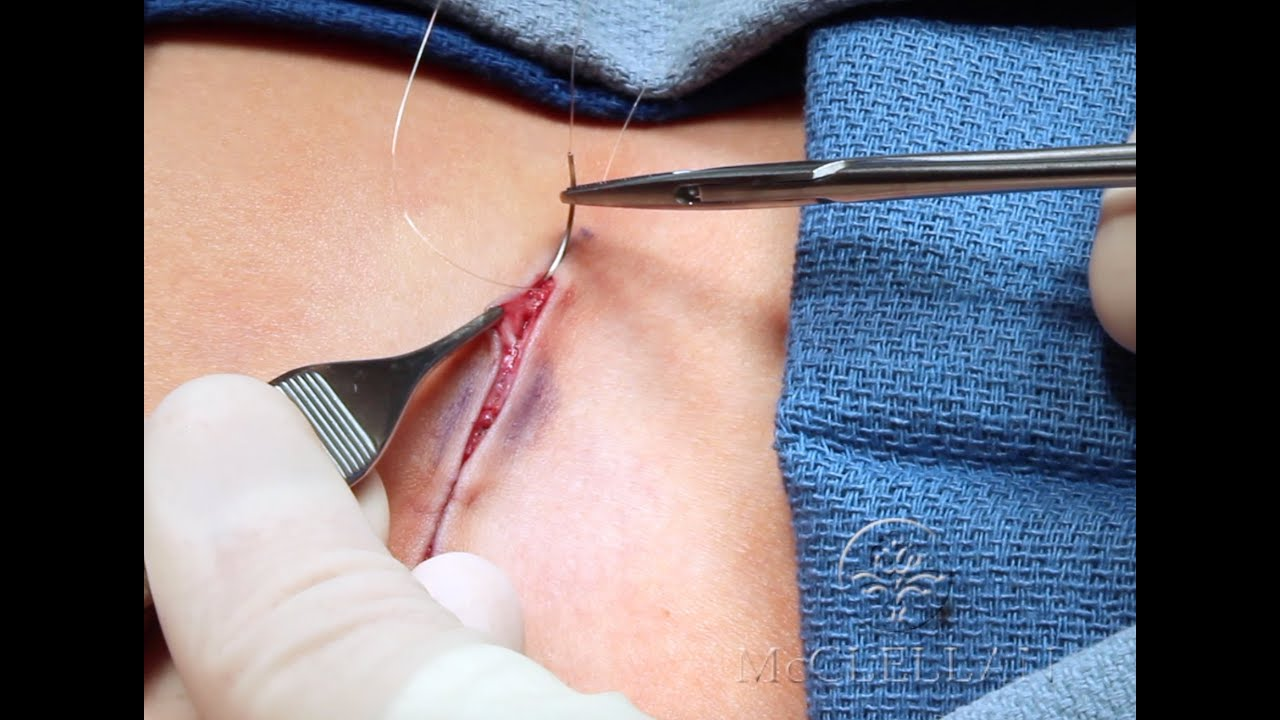Live Surgery: Running Subcuticular Suture  What is an Intracuticular or  Subcuticular Suture?