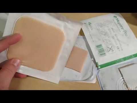 Лечение пролежней гидроколлоидными повязками.