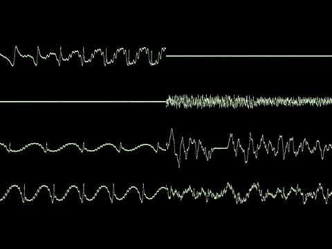 "MD - ""Sonic 2: Chemical Plant Zone"" by Masato Nakamura - Oscilloscope View"