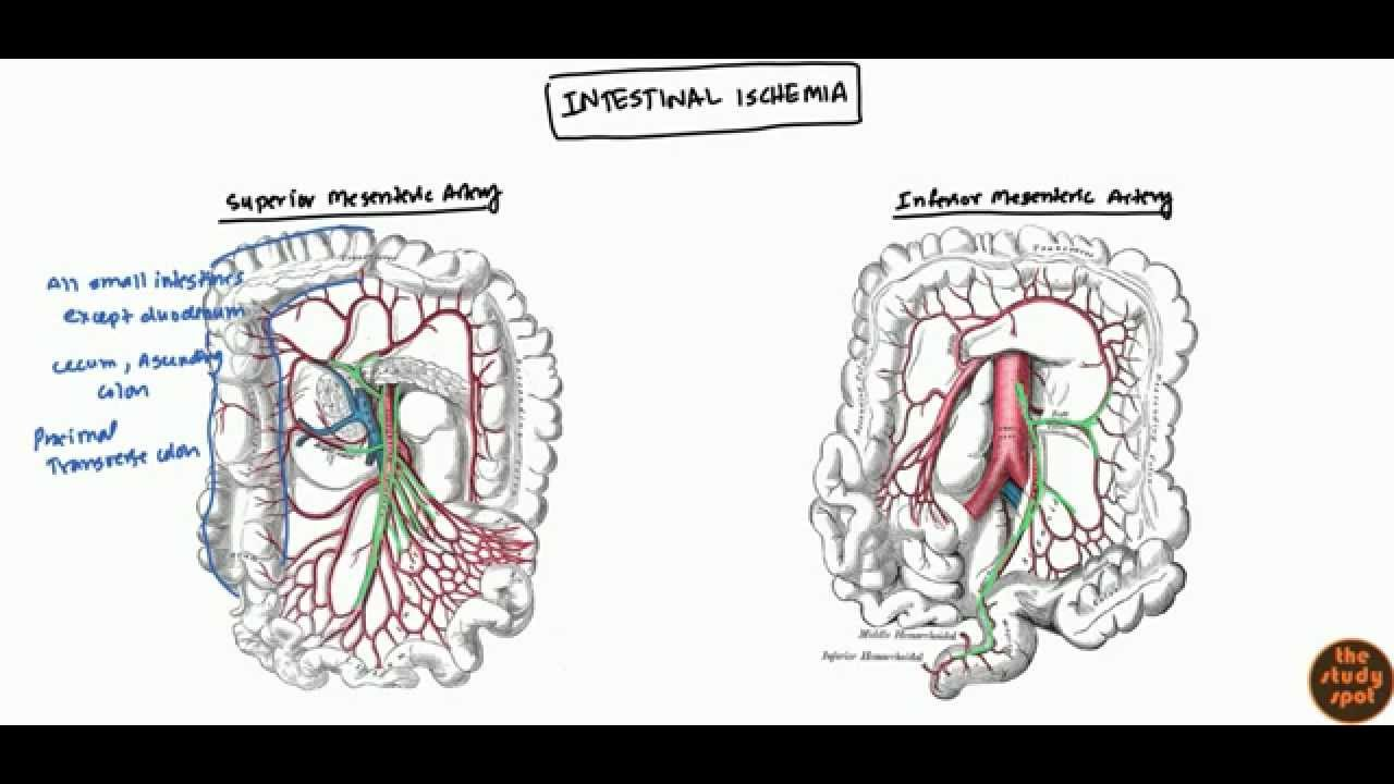 mesenteric ischemia ischemia bowel and colonic ischemia for usmle step 2 youtube [ 1280 x 720 Pixel ]