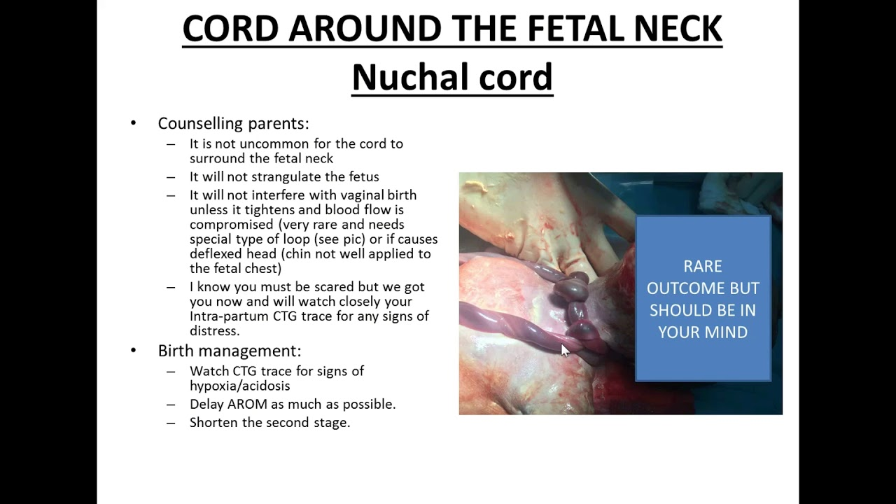 Umbilical cord around neck ultrasound