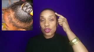 Alopécie !! Let's talk about hair avec Cynthia