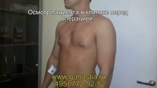Гинекомастия - операция