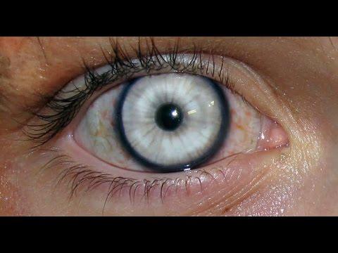 Помутнение стекловидного тела глаза? Что это такое и как лечить ...