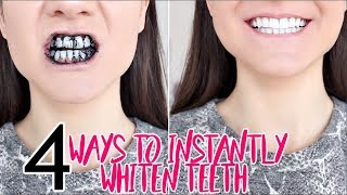 How To INSTANTLY WHITEN YOUR TEETH !!