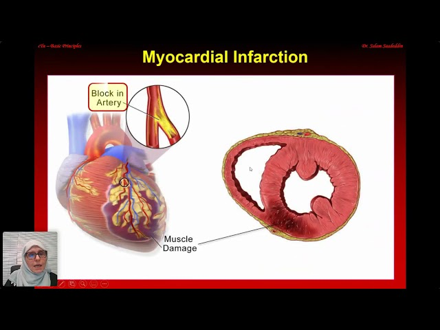 Series Laboratory Biochemistry of Diseases: Heart Disease 22 March 2021
